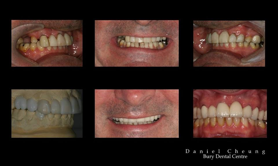 Tooth Wear Smile Makeover