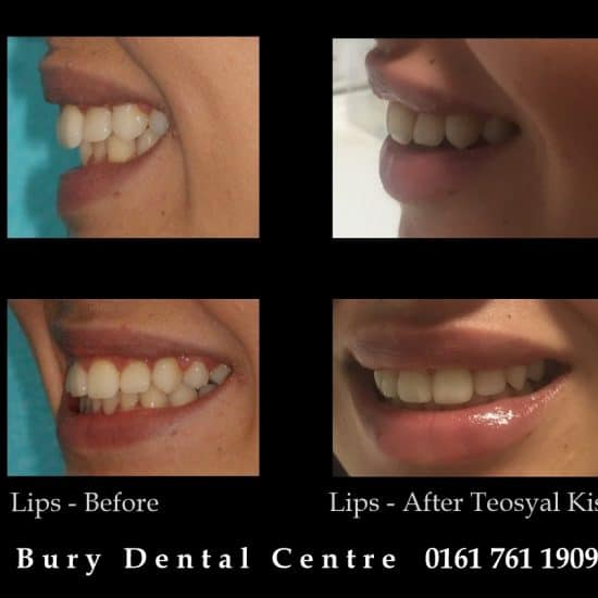 Lip fillers augmetation Teosyal Kiss