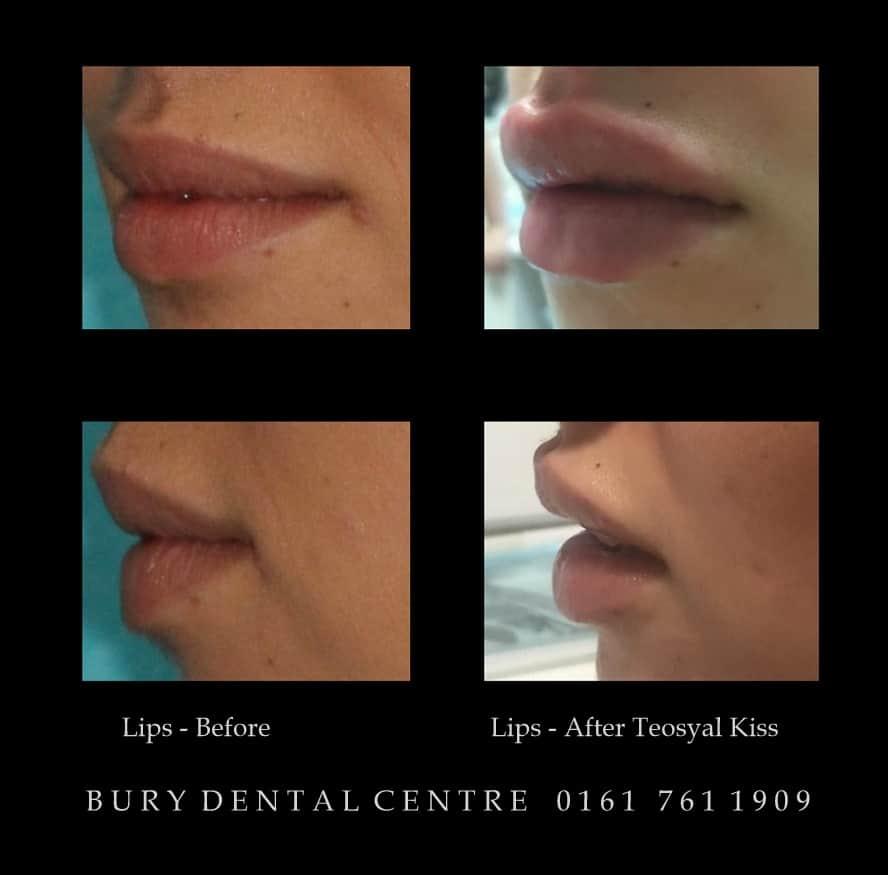 Lip fillers augmetation  Teosyal Kiss