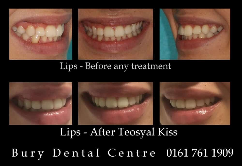 Lips - Teosyal Kiss