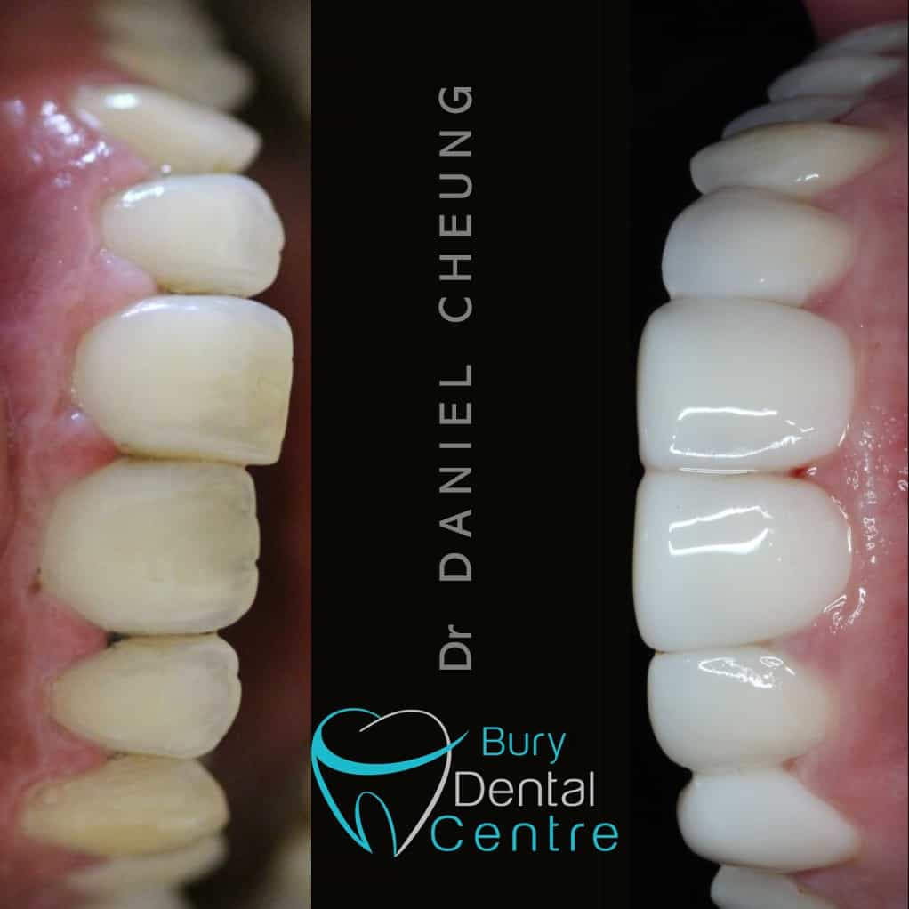Composite Bonding Composite Veneers