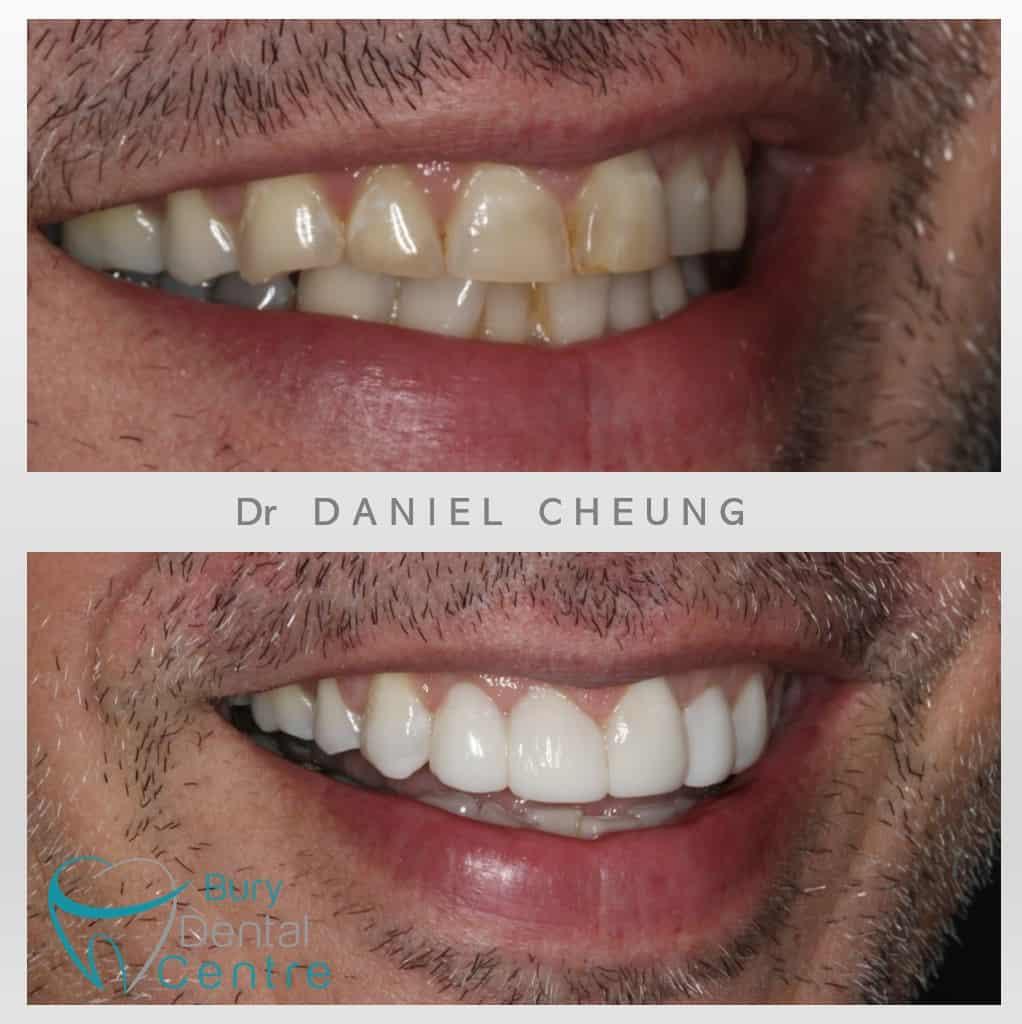 Composite Bonding Bury Dental Centre