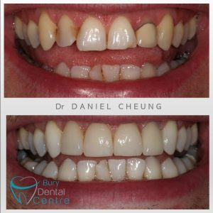 0. Crowns and Veneers and whitening (2)