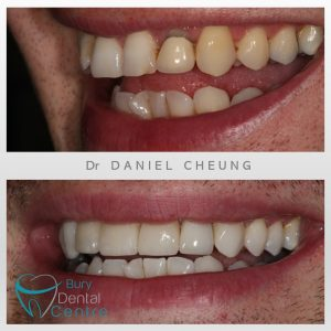 0. Crowns and Veneers and whitening