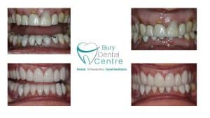 0. Crowns and new denture