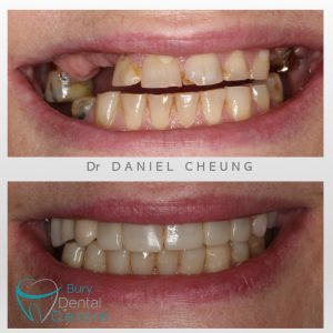 0. Denture and Composite