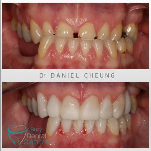 0. Provisionals Tooth Wear 2
