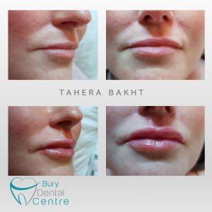 0. TB Lips