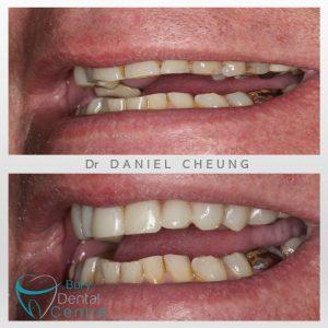 0. Tooth Wear Bonding (2)