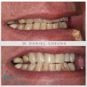 0. Tooth Wear Bonding (4)