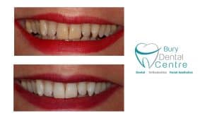 00. tooth whitening