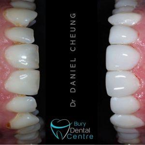Composite Veneers Bury Dental Manchester