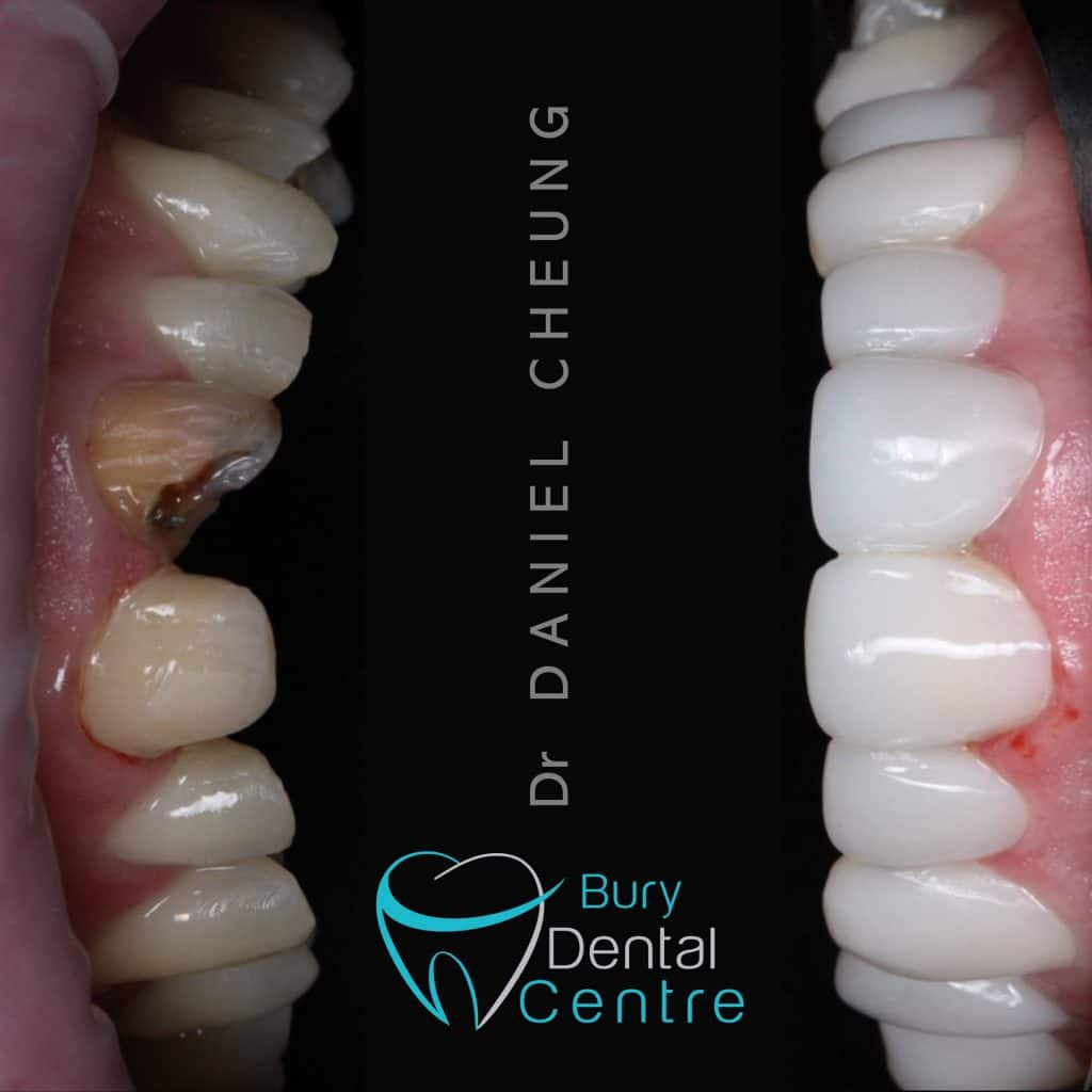 Before and After Invisalign and Composite Bonding