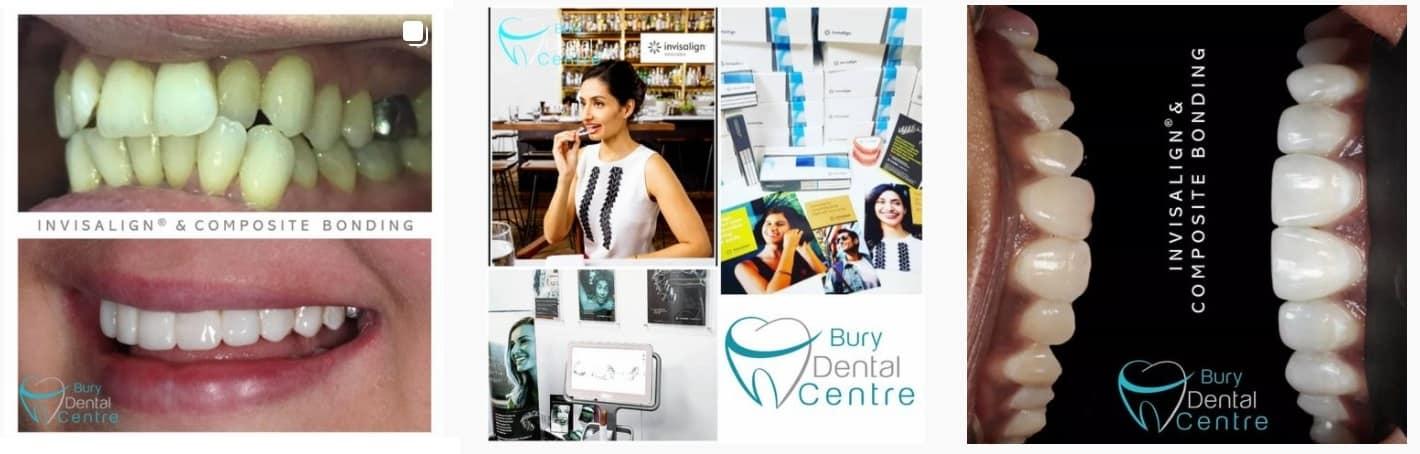 Composite Bonding Bury Dental Centre Invisalign Manchester Bury Bolton Whitefield Stockport Salford Greater Manchester Lancashire InvisalignUK