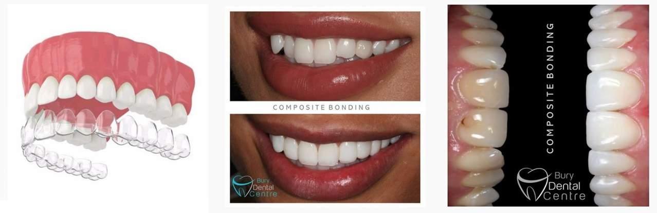 Composite Bonding Bury Dental Centre Invisalign Smiles Whitening White smile Manchester Bury Bolton Whitefield Stockport Hollywood smile Salford Greater Manchester InvisalignUK Lancashire